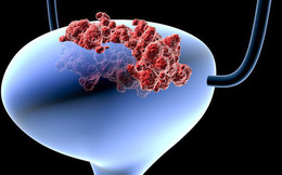 Ung thư bàng quang đang gia tăng, có liên quan tới thói quen đa số nam giới mắc phải