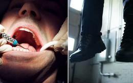 Răng khôn đau buốt mà mãi không được nhổ, người đàn ông uất ức làm liều