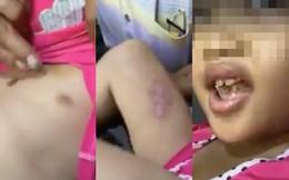 Cha dượng đánh đập, châm thuốc lá vào người bé gái 6 tuổi ở Sài Gòn