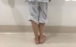 Ca bệnh hiếm: Cô bé lớp 9 chân ngắn chân dài khiến bác sĩ buộc phải thay khớp háng