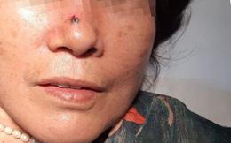 """Nốt ruồi trên sống mũi bỗng """"hoá"""" thành ung thư: Cách phân biệt nốt ruồi và ung thư"""
