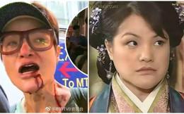 Nữ diễn viên nổi tiếng TVB bị người dân bức xúc, đánh trọng thương trên phố