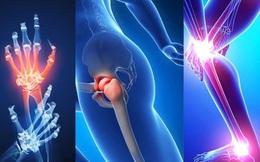 Người bị xương khớp kém, nên chọn môn thể dục thể thao nào là tốt nhất?
