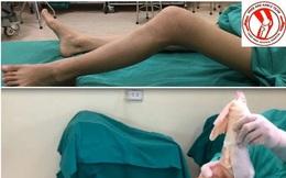 Nữ sinh 16 tuổi đã ung thư xương: Dấu hiệu chỉ là cơn đau âm ỉ dễ bỏ qua