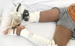 Con gái bị rắn cắn nhưng cha đưa đi thầy lang cắt lể chứ không đến bệnh viện khiến bé 13 tuổi phải cắt bỏ bàn chân phải