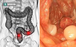 PGĐ Bệnh viện K mách 4 dấu hiệu ung thư đại trực tràng: Dấu hiệu thứ 2 dễ nhận biết nhất