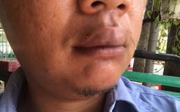 Phóng viên Đài Tiếng nói Việt Nam trình báo bị giang hồ đánh, tới tận bệnh viện và nhà riêng ở Sài Gòn uy hiếp
