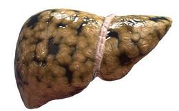 Gan nhiễm mỡ không chỉ do béo phì gây ra, 4 yếu tố khác cần phải cảnh giác hơn