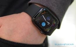 Đây là lý do vì sao tôi không muốn sử dụng Apple Watch hay bất kỳ mẫu đồng hồ thông minh nào khác