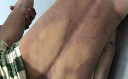 Nguyên nhân nam thanh niên chết trong nhà tạm giữ công an ở Đồng Nai, khắp người bầm tím