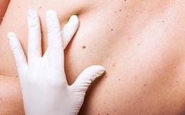 """Những thay đổi trên da có thể là do các tế bào ung thư """"quấy nhiễu"""": Hãy nhanh đi khám"""