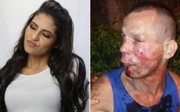 Cướp nhầm nữ đô vật UFC xinh đẹp, tên trộm đen đủi bị đánh cho bầm dập mặt mũi phải cầu cứu cảnh sát