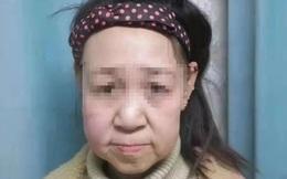 Thiếu nữ 15 tuổi bị gọi là 'quái vật' vì gương mặt như bà lão 60
