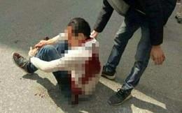 Nam thanh niên bị 2 đối tượng rượt đuổi, chém trọng thương trên phố bị nhiễm HIV