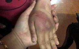 Bé gái 8 tuổi bị bố đẻ bạo hành thâm tím người