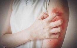 Bệnh nổi mề đay là gì? Nguyên nhân, triệu chứng và cách chữa hiệu quả