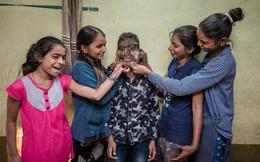 Cậu bé Ấn Độ mang khuôn mặt 'người sói'