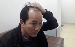 """Tài xế xe dù """"nhái xe bus"""" ở Hà Tĩnh từng đánh tài xế xe bus tóe máu"""