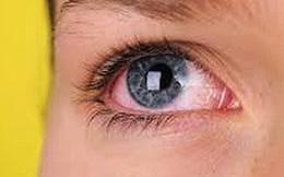 Bệnh gây mù lòa hàng đầu thế giới: Cứ 2 giây có 1 người không nhìn thấy ánh sáng