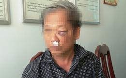"""Thông tin mới nhất vụ phóng viên VTV bị đánh sau khi báo tin bắt """"đất tặc"""""""
