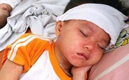 """Cả thế giới đang """"gồng mình"""" đối phó với bệnh sởi: Lý do bệnh lây lan khó kiểm soát"""