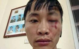 """Shipper tố bị khách cầm điếu cày đánh chảy máu mắt vì """"để khách chờ"""""""