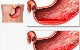 Người có bệnh viêm loét dạ dày, nếu gặp dấu hiệu sau là đã biến chứng, cần nhập viện ngay