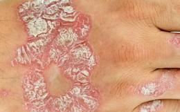 Hiểu đúng nguyên nhân gây viêm da cơ địa (chàm) để có cách điều trị hiệu quả