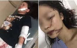 Vụ thiếu nữ 18 tuổi bị rạch mặt, khâu 60 mũi: Nạn nhân ra tay trước