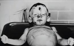 Cuộc sống như địa ngục trước khi lìa đời của cậu bé 3 tuổi, liên tục bị mẹ nuôi ruồng bỏ, hành hạ và xâm hại vùng kín