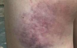 Học sinh lớp 4 bị cô giáo đánh bầm mông vì không làm được bài
