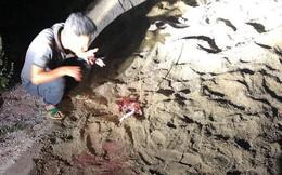 Bé trai 7 tuổi bị chó tấn công nhập viện cấp cứu trong tình trạng nguy kịch