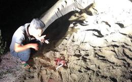 Bé trai bị đàn chó tấn công ở Hưng Yên đã tử vong