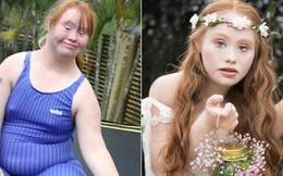 Người mẫu trẻ mắc bệnh Down từng thay đổi chuẩn mực cái đẹp thế giới 4 năm trước giờ đây đã có bước tiến không ngờ, mơ thành 'thiên thần Victoria's Secret'