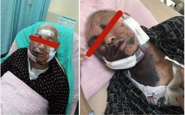 Không chịu ăn, cụ ông 85 tuổi bị con trai đánh đến gãy xương sống
