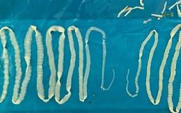 Kinh hãi hai con sán dây dài cả mét trong người một bệnh nhân