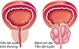 Chuyên gia lý giải nguyên nhân gây phì đại tuyến tiền liệt ở nam giới, triệu chứng và phương pháp điều trị