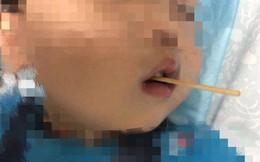 Cậu bé 3 tuổi suýt mất mạng sau khi ăn xúc xích, cha mẹ vạn lần không được cho con vừa ăn vừa làm điều này