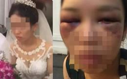 Xôn xao thông tin cô dâu bị đánh bầm mắt vì từ chối chồng hôn trong đám cưới