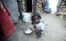 24h qua ảnh: Em bé Yemen ngồi ăn cơm tại khu ổ chuột