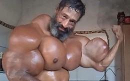 Cơ bắp cuồn cuộn của người đàn ông nghiện tiêm hỗn hợp dầu