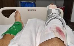 Đi chơi công viên, người đàn ông bị cắt bỏ chân chỉ vì một nguyên nhân không ai ngờ
