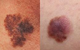 BS Mỹ chỉ cách phân biệt các loại ung thư da khác nhau, dấu hiệu phát hiện bệnh sớm nhất