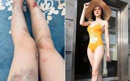 """""""Quỳnh búp bê"""" Phương Oanh gây xôn xao khi khoe đôi chân đầy vết thương"""