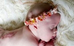 Khám thai 10 lần bác sĩ đều khuyên nên phá bỏ, người phụ nữ kiên quyết không nghe và cuối cùng kì tích đã xuất hiện