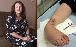 Bị lọ nước hoa rơi trúng chân, người phụ nữ chịu đựng nỗi đau suốt 2 năm trước khi buộc phải cắt bỏ một phần chân