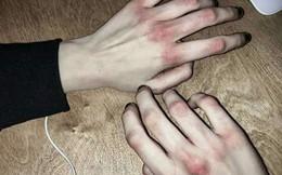 Cô gái 22 tuổi mắc bệnh máu trắng kể về nỗi kinh hoàng chứng kiến giây phút cận tử