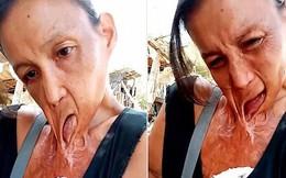 Người phụ nữ khốn khổ với đôi môi dính chặt ngực suốt 15 năm