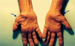Dấu hiệu đau nhói, tê đầu ngón tay cảnh báo những vấn đề sức khỏe cực nghiêm trọng