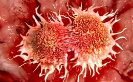 Nhà có 3 con gái thì 2 người mắc ung thư: Chuyên gia chỉ rõ nguyên nhân và việc cần làm